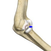 Osteochondritis Dissecans of Elbow